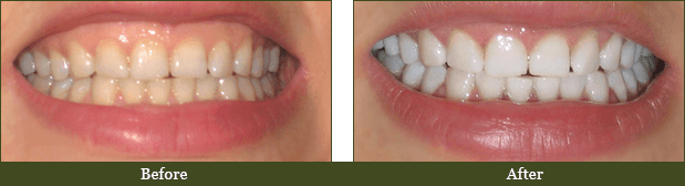 Dentist Ormond Beach - Before and After Case 1