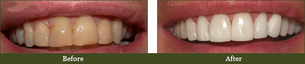 Dentist Ormond Beach - Before and After Case 2